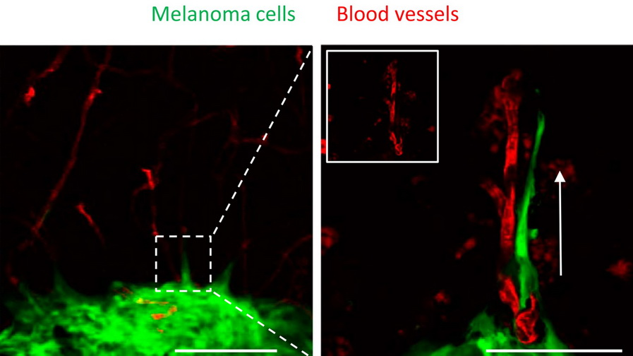 Melanoma on blood vessels 3