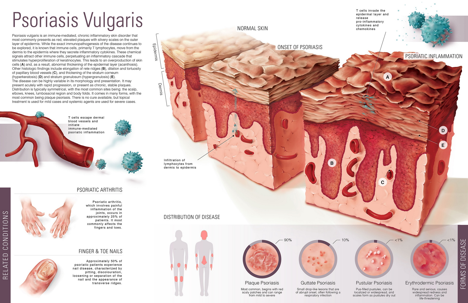 psoriasis a disease affecting the integumentary All-natural is psoriasis a disease of the integumentary system iron eczema treatment naturasil for eczema is an all-natural treatment for eczema that is fast.
