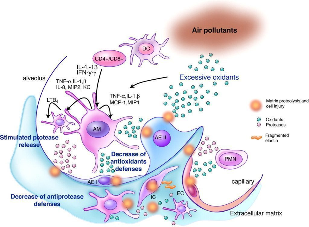 Alveolar macrophages
