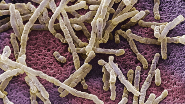 clostridium difficile