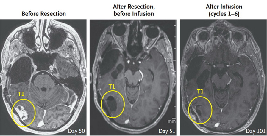 CAR-T vs glioblastoma